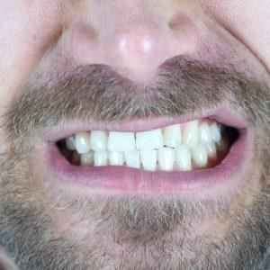 Le bruxisme: comment le stress affecte vos dents